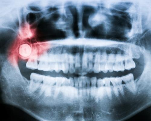 X-ray showing impacted wisdom tooth